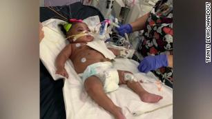 191113024032-texas-infant-life-support-medium-plus-169